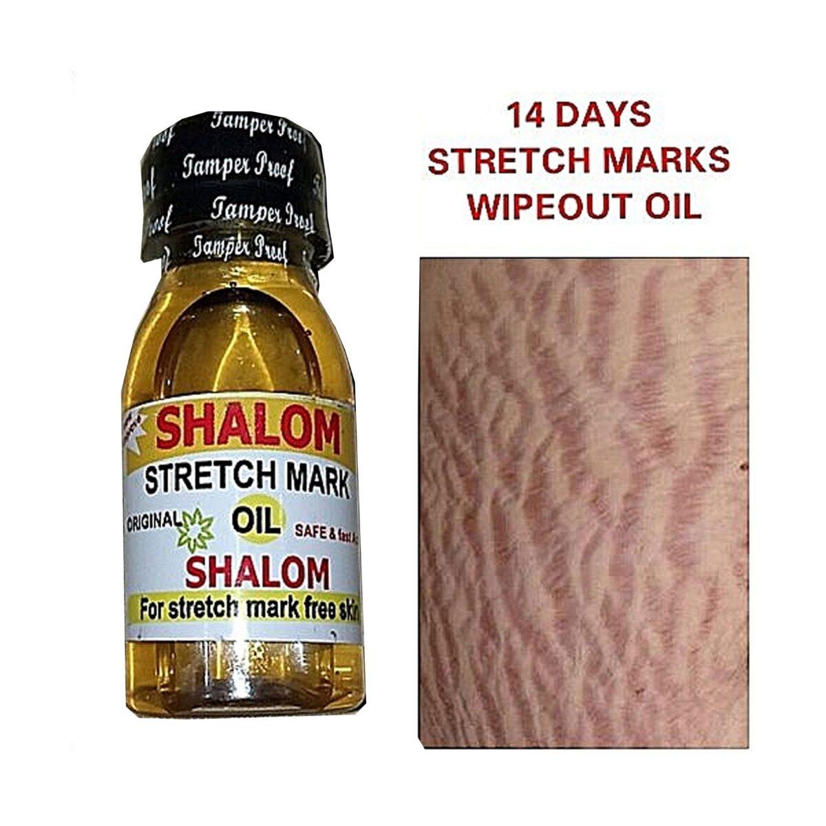 Shalom 14 Days Stretch Marks Wipeout Oil